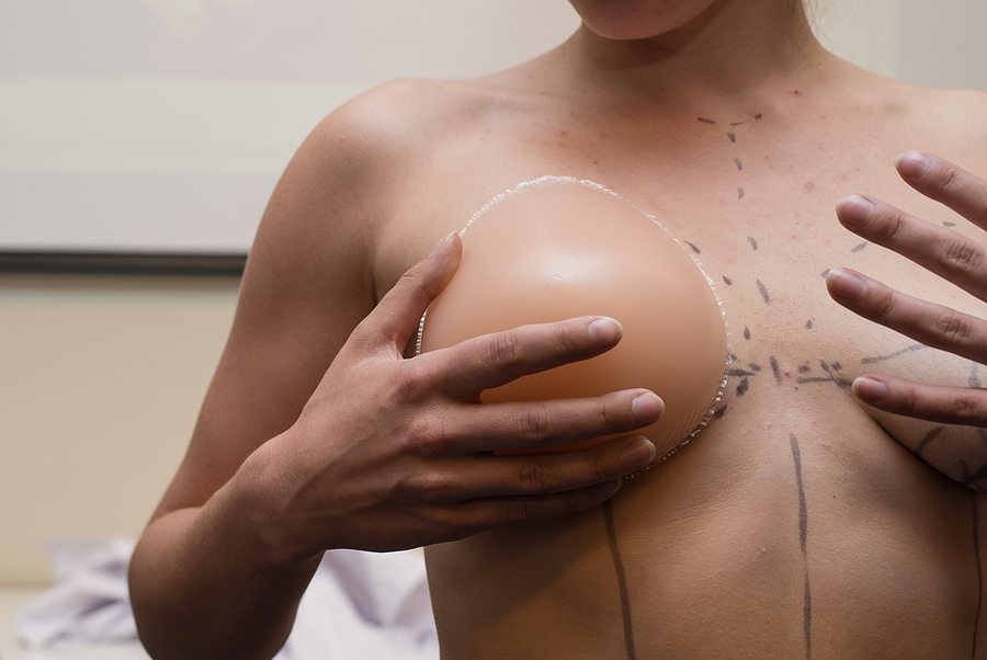 Woman preparing for her breast surgery